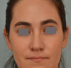 Dr Grigoryants rhinoplasty