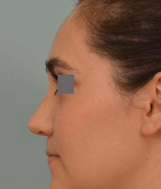 rhinoplasty by Dr. Grigoryants