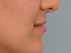 lip augmentation with silicone implants
