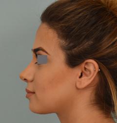 Dr. Vladimir Grigoryants nose reshaping