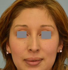 deviated septum surgery los angeles, Dr Grigoryants