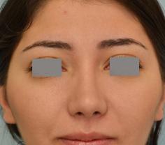Dr Grigoryants deviated septum surgery