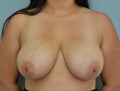 Dr Grigoryants breast reduction