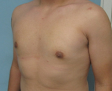 los angeles breast reduction in men