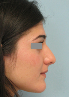 rhinoplasty los angeles pictures
