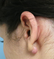 Earlobe keloid surgery Los Angeles