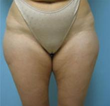 Los angeles liposuction
