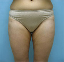 Glendale Pasadena liposuction