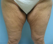 Thigh lift pasadena