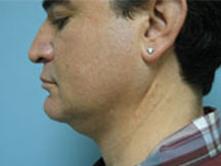 Liposuction Pasadena