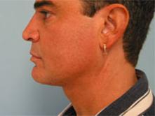 Glendale liposuction