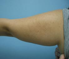 Liposuction Burbank