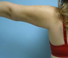 Burbank Liposuction