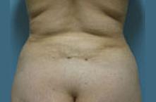 Encino liposuction
