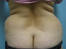 Thousand oaks liposuction