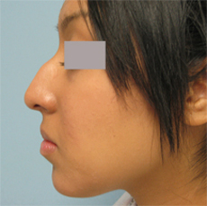 Nose surgery los angeles