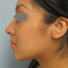 Los angeles nose surgery