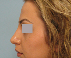 Los Angeles nose reshaping