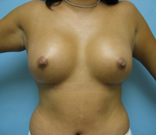 Beverly Hills Breast enlargement