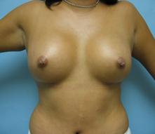 Breast enlargement Encino