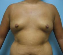 Breast enlargement Pasadena Glendale