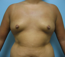 Breast enlargement Encino