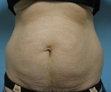 Encino tummy tuck