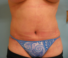 tummy tuck beverly hills los angeles