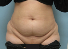 before tummy tuck