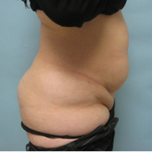 tummy tuck surgery
