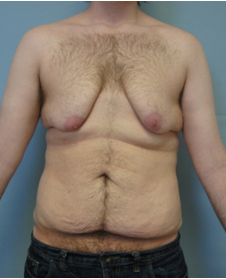 surgery after weight loss
