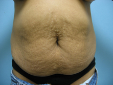 tummy tuck and liposuction los angeles