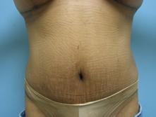 los angeles tumm tummy tuck and liposuction