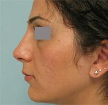 pasadena nose surgeon