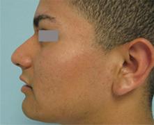 nose surgeon encino