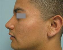 encino nose surgeon