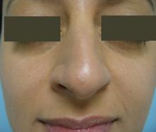 burbank nose surgery