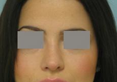 rhinoplasty photo before