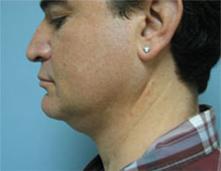 rhinoplasty in men los angeles