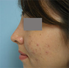 los angeles revision rhinoplasty