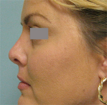 Los Angeles revision nose surgery