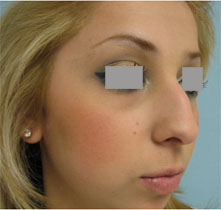 nose surgeon pasadena