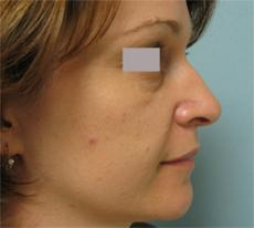 los angelesl nose surgery