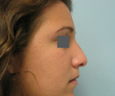 Nose surgeon in Beverly Hills