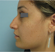 before rhinoplasty Beverly Hills