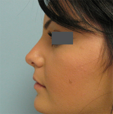 glendale nose surgery