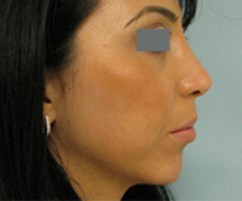 Glendale nose surgeon