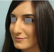 rhinoplasty encino