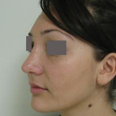 pasadena rhinoplasty