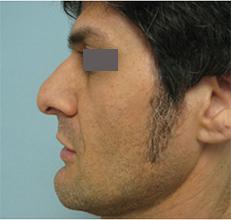 rhinoplasty in men glendale